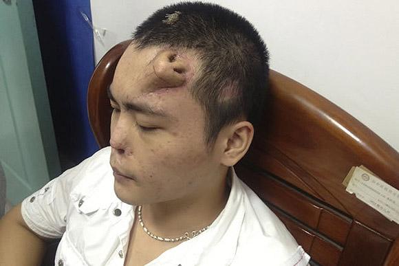 Nariz na testa de paciente chinês